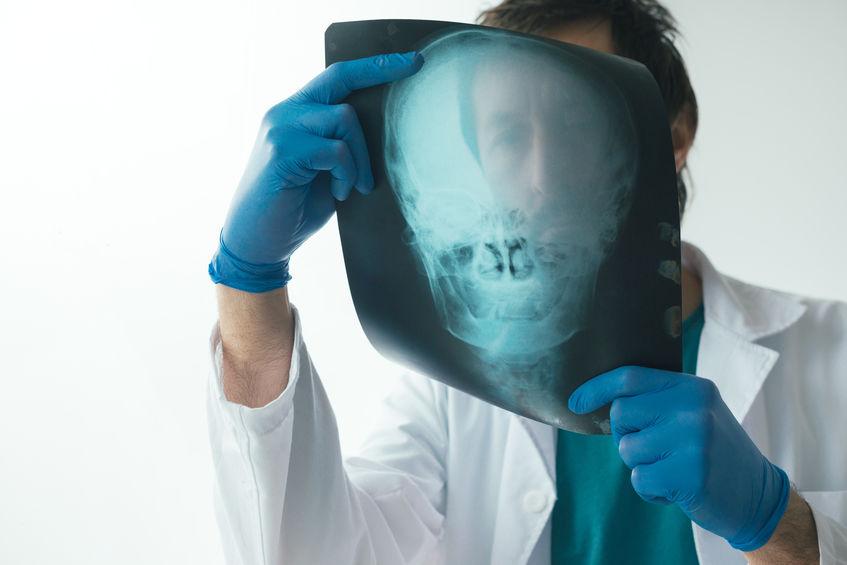 Radiologe begutachtet Röntgenbild